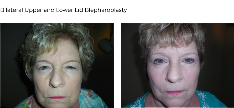 before after – Blepharoplasty