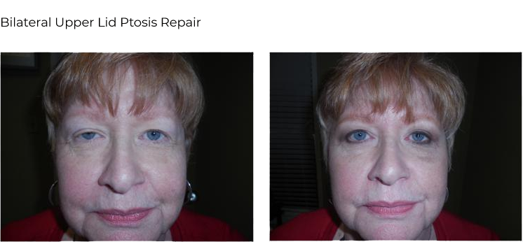 before after – Ptosis repair