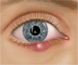 Styes and chalazia  on eyelids